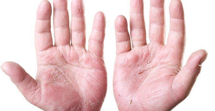 Hand-Dermatitis