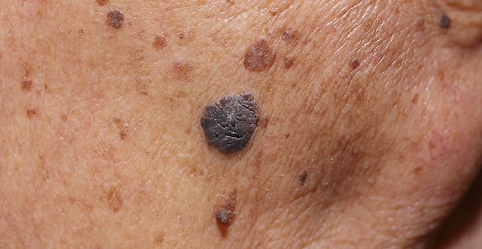 Mohs Surgery Skin Cancer Removal In Coral Springs Fl