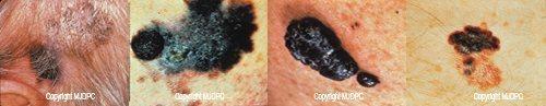 skin_cancer1