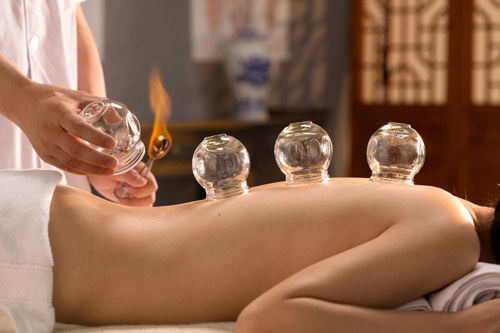 Cupping Massage Therapy