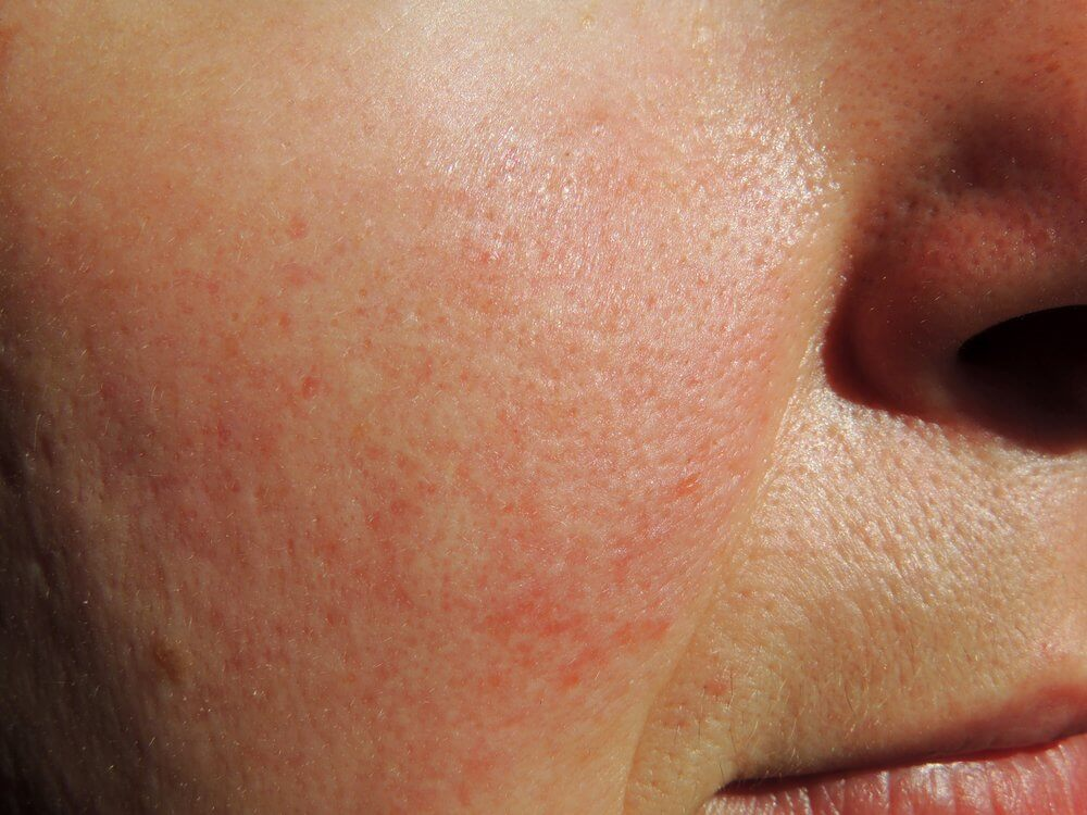 Acne Rosacea Treatment 6 Reasons Not To Wait Coral Springs